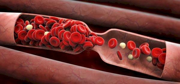 Тези храни разреждат кръвта и предпазват образуването на тромб