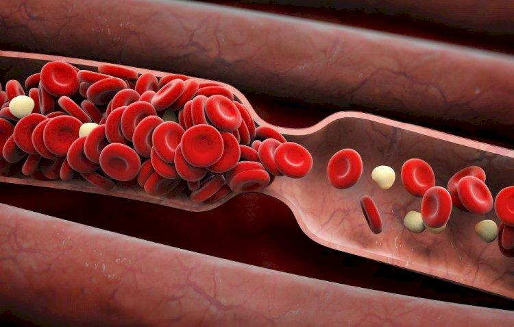 Най-добрите начини да се предпазите от кръвни съсиреци при К-19