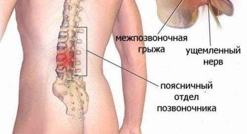 Задължителни и забранени упражнения при дискова херния. За прибиране. След операция