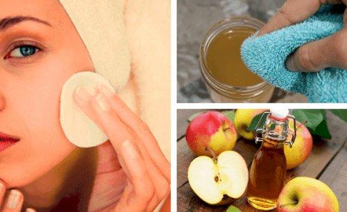Ябълковият оцет ще ви помогне да се справите с проблемна кожа: старчески петна, акне, лунички и др.